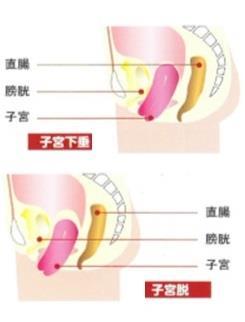子宮下垂 子宮脱