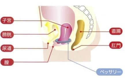 下垂した子宮を下から支えるペッサリー療法