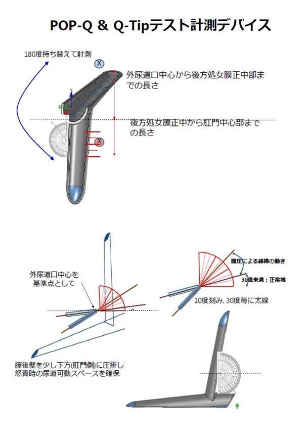 POP-Q・Q-Tipテスト 計測方法