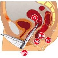 子宮脱評価の測定部位
