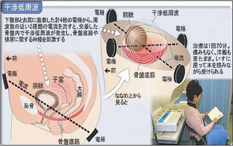 干渉低周波が排尿に関する神経を刺激するイメージ