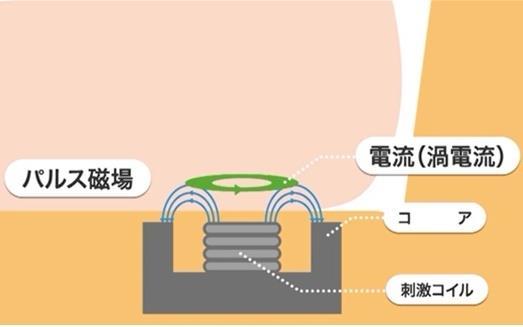 磁気刺激の原理 パルス電流を加える