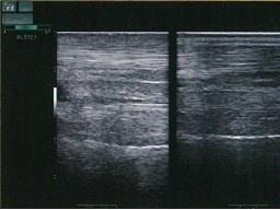 画像サンプル ウマの腱