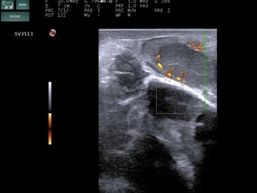 臨床画像 機能性黄体のカラードップラー像