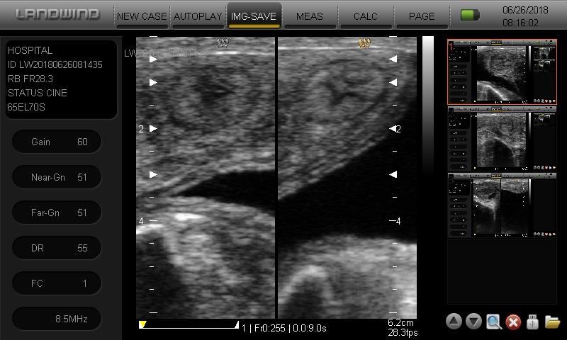 画像診断例 子宮画像